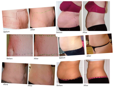 Strawberry Laser Lipo & Stretch Mark Reduction